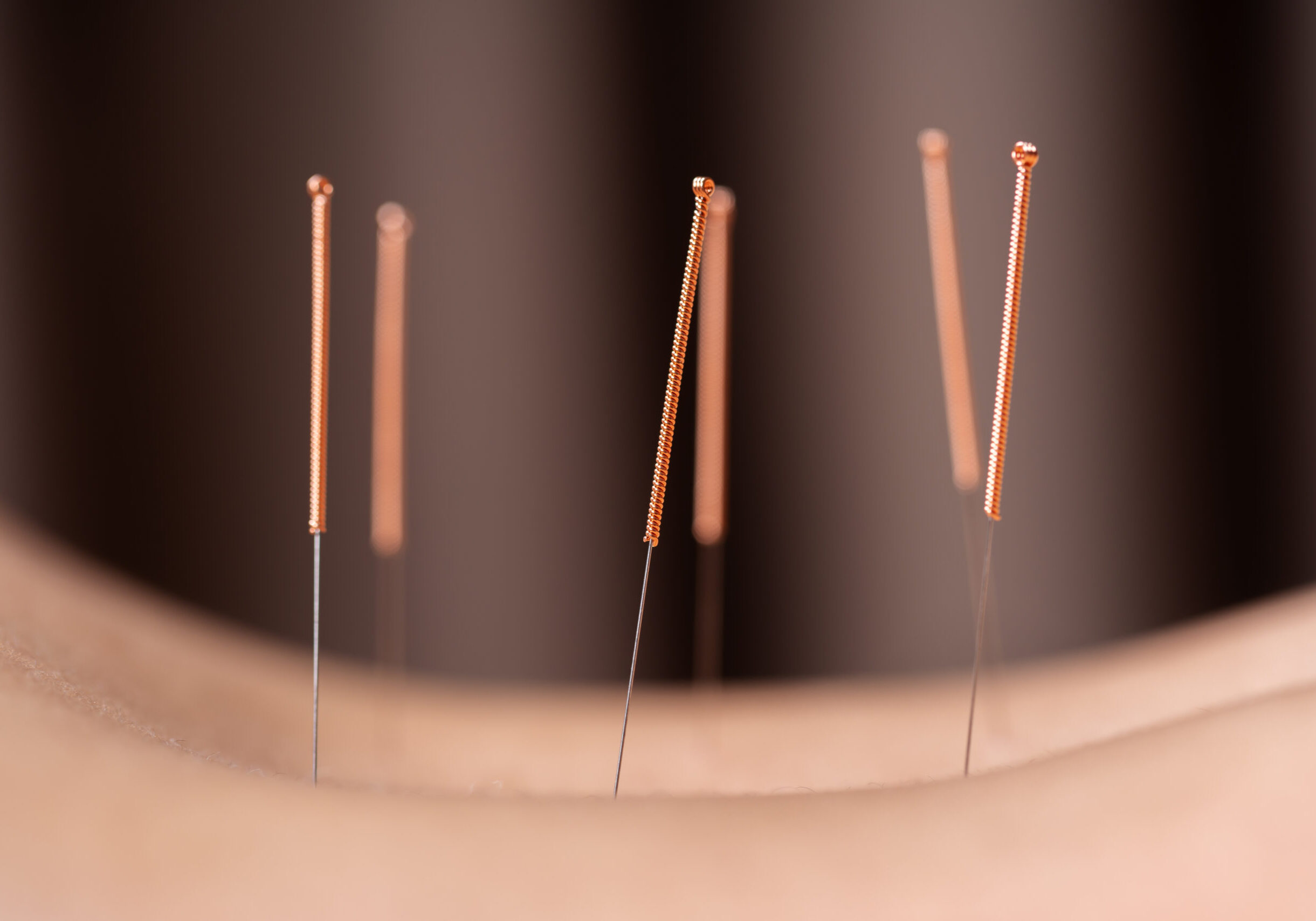 Close,Up,Woman,Undergoing,Acupuncture,Treatment,On,Back