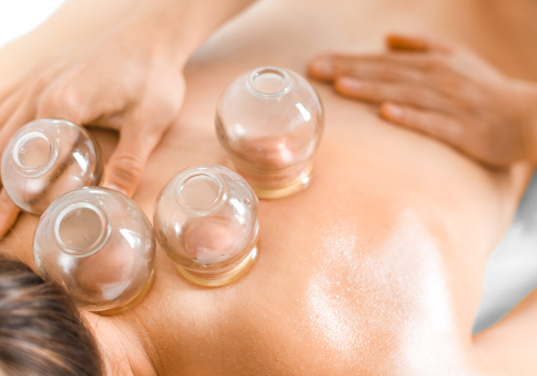 Detail,Of,A,Woman,Therapist,Hands,Giving,Cupping,Treatment,On